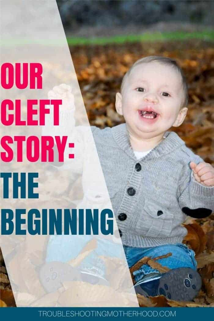 Our Cleft Story: The Beginning